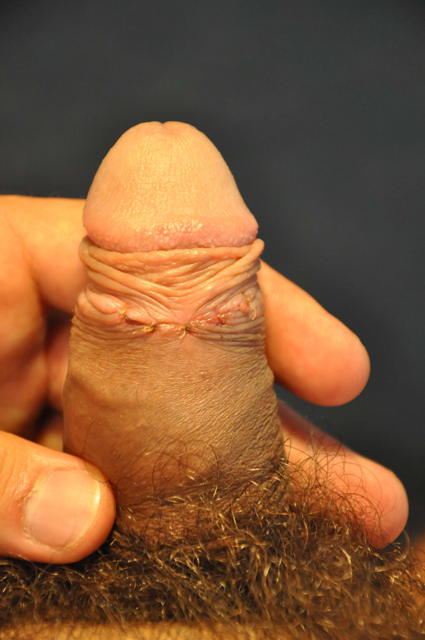 Masturbation With Dorsal Slit